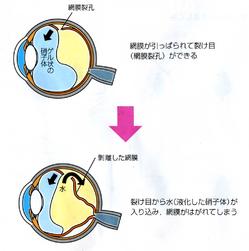 ~ 左眼後部裂孔網膜剥離復位手術による入院で感じたこと 第二回 ~